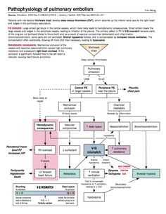 Pathophysiology of pulmonary embolism (via McMaster Pathophysiology Review www.pathophys.org)