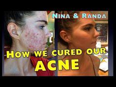 Dr. McDougall's Health & Medical Center Nina & Randa Nelson: Cure Embarrassing Acne & Oily Skin   Dr. McDougall's Health & Medical Center