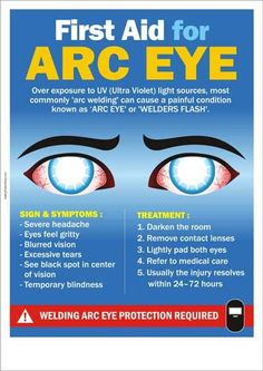 First Aid for Arc Eye