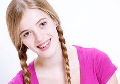 Cara Merawat Gigi Behel Agar Tetap Bersih