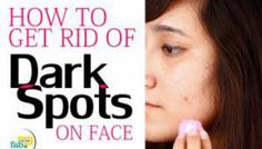 How to Get Rid of Dark Spots on Face with Easy Home Remedies