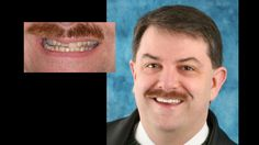 Smile makeover with porcelain crowns & porcelain veneers. Cosmetic dentistry by Dr. Mike Maroon of Advanced Dental in Berlin, CT.