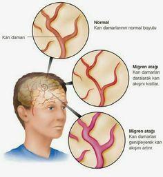 Obat Herbal Migren Ace Maxs Merupakan solusi terbaik pengobatan penyakit migren secara menyeluruh, aman, alam, dan tanpa efek samping.