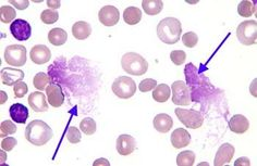 Smudge cells seen in CLL