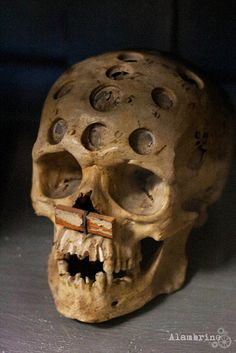 Skull that has gone through Trepanning (a surgical intervention in which a hole is drilled or scraped into the human skull, exposing the dura mater...) They did this for people who had headaches - probably a migraine sufferer.