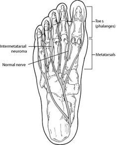 A neuroma is like a pinched nerve, but in your foot. Typically, a neuroma occurs between the third and fourth toes on the ball of the foot. The nerve thickens and results in a compressed feeling in your foot.