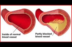 6 Foods That Naturally Prevent Clogged Arteries And Lower Your Risk Of Heart Attacks