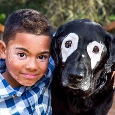 Boy with rare skin disorder meets his dog twin. •Eight yr old Carter Blanchard, of Arkansas, who has rare skin condition VITILIGO isn't feeling so alone since meeting a dog with the same disorder. •Vitiligo destroys the cells that make pigment in the skin. Carter was first diagnosed in kindergarten. •Life was tough for Carter, but help came in the form of Rowdy, a 13 yr old purebred black Labrador Retriever in Oregon who was diagnosed with vitiligo the same year as Carter. ♥