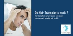 Do Hair Transplants work ? Hair transplant surgery surely can restore your naturally growing hair for life. For More : http://drnilesh.com/