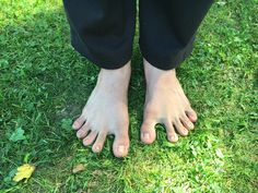 Health Fitness, Lifestyle, Health And Fitness, Bunion, Fitness