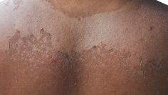 Try these 12 natural cures for scorching sunburns.