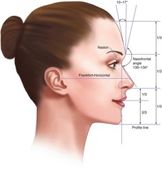 Facial Evaluation in Orthognathic Surgery Orthognathic Surgery, Pretty Nose, Chin Implant, Nose Jobs, Rhinoplasty Before And After, Medical Photography, Facial Anatomy, Plastic Surgery Photos, Perfect Nose