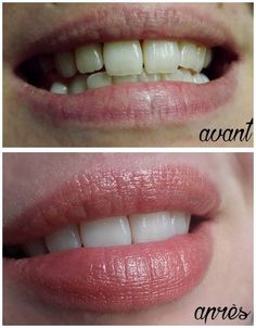 Blanchir ses dents naturellement sans passer par des techniques controversées ou dangereuses c'est possible! Je vous donne aujourd'hui une recette bien plus efficace que le charbon végé…                                                                                                                                                                                 Plus
