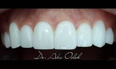 Simply a #Natural & #Healthy #Smile Dr. Husam Abu Odeh Fixed and Removable…