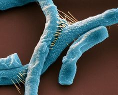 Scanning electron micrograph of Bacillus anthracis, commonly known as anthrax. ~> pic.twitter.com/Nu1YTaJlKz