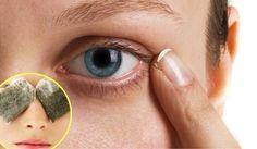 5 remedios contra las ojeras - Mejor con Salud