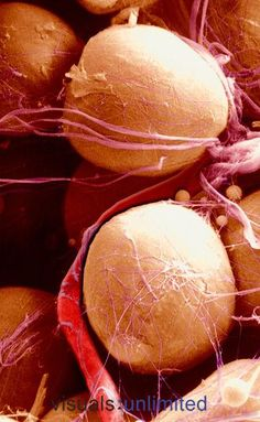 Adipose cells or adipocytes are specialized connective tissue for the storage of fat. The large adipocytes are held in place by strands of collagen fibers and a fine network of reticular fibers. A large capillary is seen near the cell surface. Life Science, Science And Nature, Science Chemistry, Scanning Electron Microscope, Microscopic Photography, Micro Photography, Macro And Micro, Human Anatomy And Physiology, Things Under A Microscope