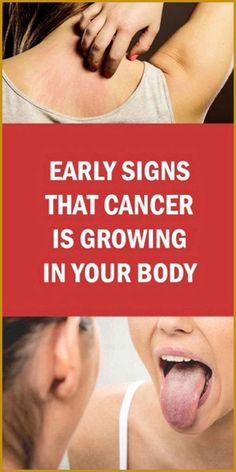 Early Signs That Cancer Is Growing In Your Body – Health Awareness Media Acupuncture, Type 1, 100 Pour Cent, Medicine Book, Herbal Medicine, Natural Medicine, Swollen Lymph Nodes, Squamous Cell Carcinoma, Endometrial Cancer