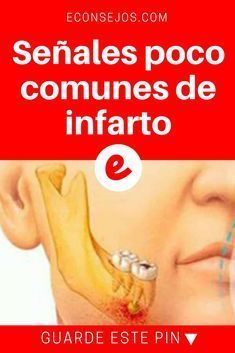 Señales de infarto   Señales poco comunes de infarto   Si cree que el dolor de pecho o en el brazo son los síntomas más comunes de un infarto, se equivoca...