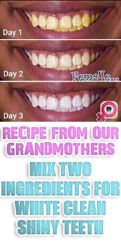 Vulgar Teeth Whitening Toothpaste #dentists #TeethWhiteningProductsMakeupTutorials