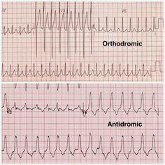 Atrioventricular Reentrant (Reciprocal) Tachycardia - AVRT - Cardiac Arrhythmias Explained