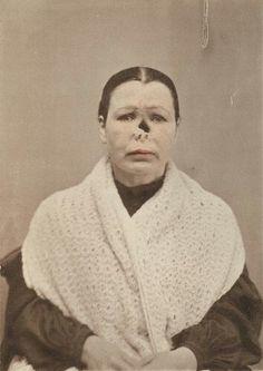 Syphiloderma Ulcerativum Perforans 1880-1885 (ca)
