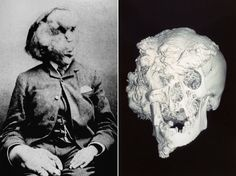 Joseph Merrick photographed (left), and his skull