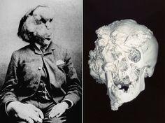 Joseph Merrick photographed (left), and his skull