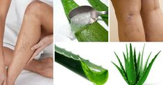 Si usted tiene muchas várices en las piernas, es porque todavía no conoce estas dos increíbles recetas - e-Consejos