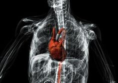 3D-printed Electronic smart pump keeps heart patients alive and active