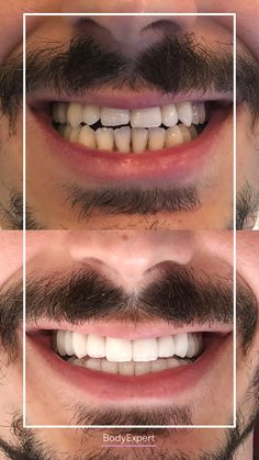 Olay, our French-Turkish patient came to Istanbul for his dental treatment. He got 22 crowns and a gummy smile for a perfect result :) For more information, please contact us !. #Bodyexpert #Testimony #BeforeAfter #SmilePerfect #ImplantsDental #DentalCrowns #TestimonyDentalCare #PerfectTeeth #MedicalTourism #DentalCare #DentalClinics #Turkey #Istanbul #Hollywoodsmile #Emax #Zirconia Implants Dentaires, Dental Implants, Medical Care, Dental Care, Perfect Teeth, Dental Crowns, Teeth Care, Hair Transplant, Clinique