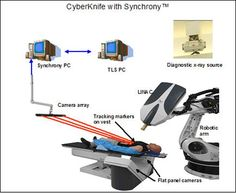 The main components of the CyberKnife with Sychrony are: (1) Linear Accelerator (LINAC) mounted on robotic arm; (2) Two flat panel cameras positioned perpindicular to diagnostic x-ray sources mounted to ceiling; (3) Synchrony-tracking vest with LED markers attached; (4) Camera array which holds three CCD cameras; (5) Synchrony and Target Locating Computers. Image courtesy Accuray Incorporated
