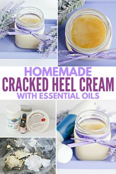 Wow, this homemade heel cream works wonders for soothing cracks and dry skin! Love the simple, all-natural ingredients like essential oils and coconut oil, plus it's SO easy to make! #footspa #diybeauty #pamper #heels #essentialoils #homemade #easyDIY #coconutoil #sheabutter