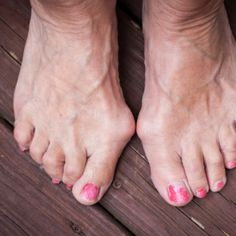 Use these 7 tips to ease your bunions without surgery. if you would like to be able to wear shoes, sandals and boots again without being in pain take a look at Meanfeet's range of Wide Fitting Bunion Relief Footwear at www.meanfeet.com