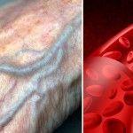 Aquí la manera de mejorar la pobre circulación de sangre en las manos y pies!