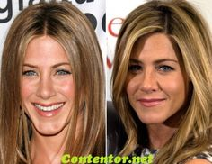 Jennifer Aniston Nose Job the truth behind jennifer aniston plastic surgery patient flow Jennifer Aniston Before and After, Has Jennifer Aniston had Cosmetic Surgery,