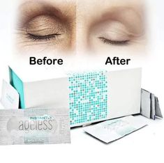 Instantly reduces the appearance of under-eye bags, fine lines, wrinkles and pores within 2 minutes of application. This specifically designed micro cream targets areas that have lost elasticity—revealing visibly toned, lifted skin lasting 6 to 9 hou Creme Anti Rides, Creme Anti Age, Anti Aging Cream, Anti Aging Skin Care, Under Eye Wrinkles, Neck Wrinkles, Face Cream For Wrinkles, Face Creams, Wrinkle Remedies