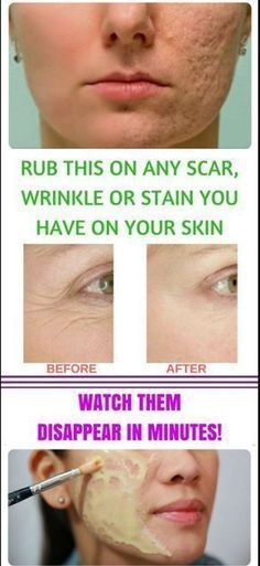 Creams to Remove Face Stains - Creams to Remove Face Stains - . - Homemade creams to remove face stains - Homemade creams to remove face stains Beauty Secrets, Beauty Hacks, Beauty Tips, Beauty Quotes, Beauty Box, Beauty Products, Skin Products, Salud Natural, Natural Honey