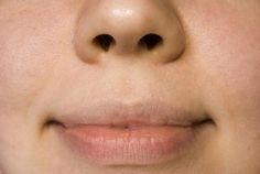 Perioral wrinkles, or lip wrinkles that appear above the top lip, can add years to a person's appearance. Common causes of upper lip wrinkles are smoking, aging, genetics and repetitive facial … Lip Wrinkles, Prevent Wrinkles, Smokers Lines, Wrinkle Remedies, Skin Resurfacing, Face Yoga, Wie Macht Man, Lip Mask, Facial Masks