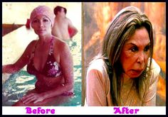 elsa patton plastic surgery before and after Elsa Patton Plastic Surgery