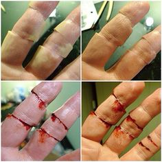 Not an actual tutorial so to speak, but so doable based on the photos alone. Cool severed/ reconstructed fingers for Halloween.