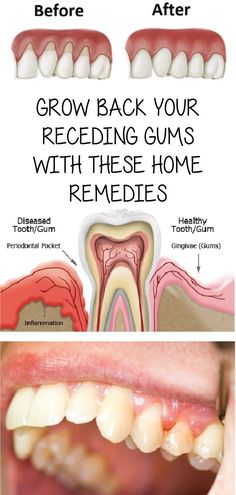 Gingivitis, usually known as gum disease, is a dental issue characterized by symptoms like constant bad breath, red or swollen gums and very sensitive, sore gums that may bleed. Health And Beauty Tips, Health And Wellness, Health Tips, Health Fitness, Health Remedies, Home Remedies, Natural Remedies, Gum Health, Dental Health