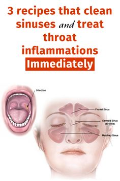 3 recipes that clean sinuses and treat throat inflammations immediately