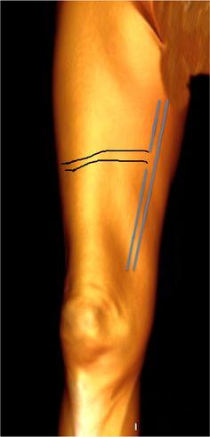 Anterior thigh circumflex vein