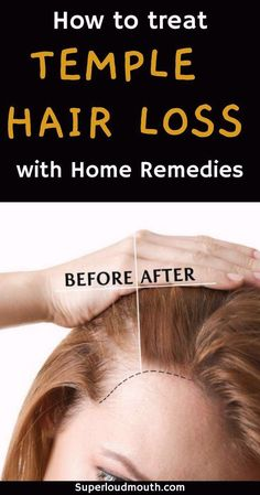 How to treat Temple Hair Loss with Home remedies #remediesagainsthairloss Hair Loss Cure, Oil For Hair Loss, Stop Hair Loss, Prevent Hair Loss, Shampoo For Hair Loss, Baby Hair Loss, Normal Hair Loss, Home Remedies For Hair, Hair Loss Remedies