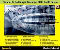 Panoramic Radiographic Landmarks Anatomical Landmarks On