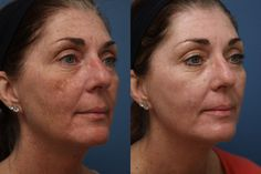 A cosa serve l'acido glicolico? Sicuramente vi starete chiedendo quando è il caso di effettuare un trattamento viso a base di acido glicolico: le sue funzionalità sono davvero molteplici, e una ser…