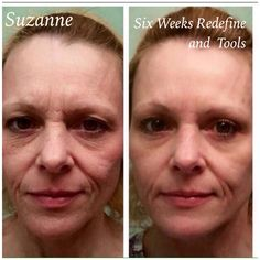 Check out Suzanne's results! She started using Rodan + Fields Redefine & AMP MD with Multifunction Eye Cream 6 WEEKS AGO! She recently added the MacroExfoliator and Acute Care strips to her routine. How amazing does she look? Ready to get Started? Rodan And Fields Redefine, Redefine Regimen, Skin Care Regimen, Multifunction Eye Cream, Amp Md Roller, 60 Day Challenge, Aging Backwards, Acute Care, Skin Firming
