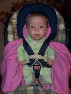 Baby with achondroplasia