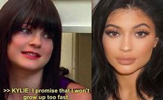 Kylie's plump pout  Kylie first sparked lip filler rumours last year, posing on instagram with a noticably enlarged pout. Despite arguing it was 'down to makeup', she admittted to having temporary fillers this year.